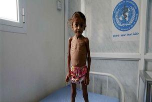 جنگ یمن چه تاثیری بر کودکان گذاشته است؟