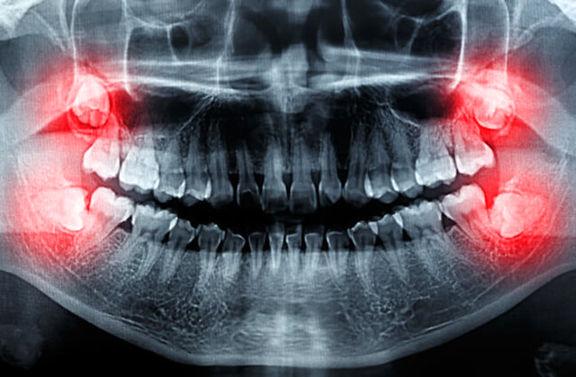 فردی بعد از کشیدن 5 دندان خود سکته کرد