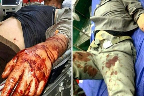 شکارچیان غیرمجاز 4  محیط بان شهرستان بهشهر را مصدوم کردند