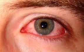 سندروم چشمان خسته، تهدیدی برای کودکان